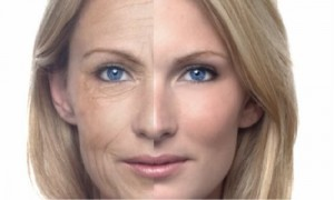 5_face-lifting