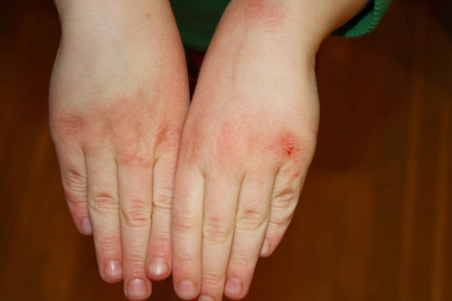 Кожа рук зимой